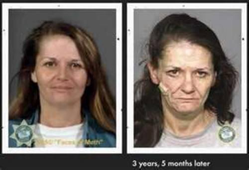 meth before and after example